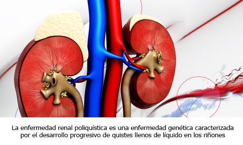 Infogen | ENFERMEDAD POLIQUÍSTICA RENAL, POLIQUISTOSIS RENAL