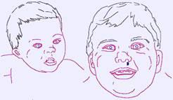 Estos niños presentan cuello corto y ancho por lo general flexible y con gran movilidad que, en ocasiones, tiene mucha piel