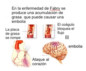 09fabry