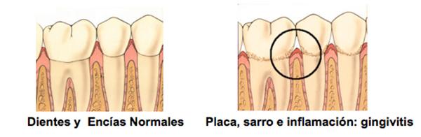 dientes01