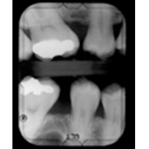 dientes04