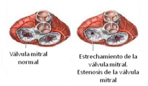cardiopatia2