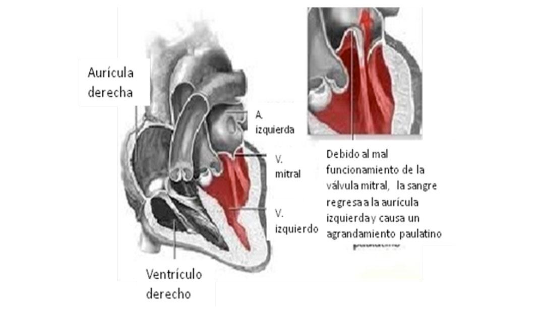 Infogen | Cardiopatías y embarazo, enfermedades del corazón y el ...