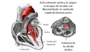 cardiopatia4