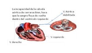 cardiopatia5