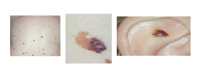 melanoma6