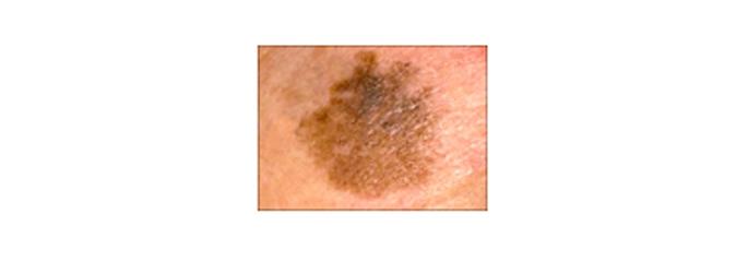 melanoma7
