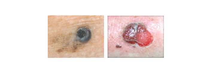 melanoma9
