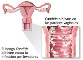Primeros sintomas de candidiasis en mujeres